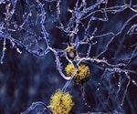 Researchers produce images that predate formation of beta-amyloid plaques in Alzheimer's disease