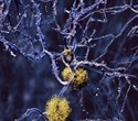Neurology researchers on the hunt for biomarker signal for early detection of Alzheimer's disease