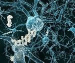 Study provides new insights into molecular mechanisms underlying role of amyloid in Alzheimer's disease