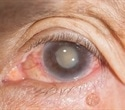 Diet and lifestyle may play greater role than genetics in cataract development, severity