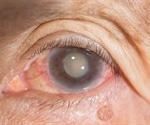 Scientists find way to reduce need for secondary cataract surgery