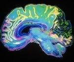 Functional magnetic resonance imaging helps visualize the human brain as a massive, interacting, complex network