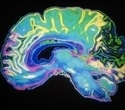 Aging brain maintains healthy cognitive function by increasing bilateral communication