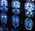 Inert gas may limit blast-induced brain injury