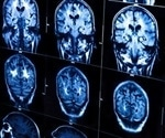 Study helps to visualize how brain develops with age