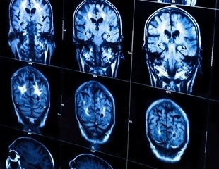 Study shows why ApoE4 increases risk of Alzheimer's disease