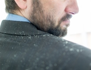 Does dandruff cause psychological distress? An interview with Dr Anjali Mahto
