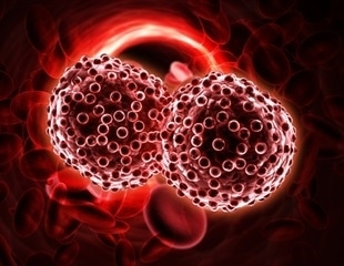 Researchers examine risk factors for B Cell Non-Hodgkin Lymphoma in Israeli, Palestinian populations