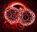 FDA researchers find underrepresentation of adults aged 75 years and older in blood cancer clinical trials
