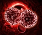 Yale study identifies how myeloma cells escape treatment