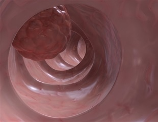 Early detection of colorectal cancer can save lives