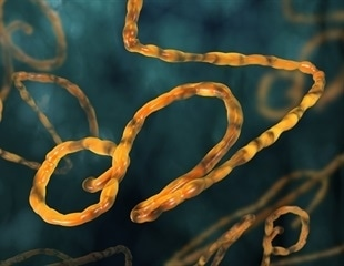 Ology Bioservices wins $8.4 million worth agreement to manufacture anti-Ebola monoclonal antibody