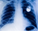 Pacemaker-type device and medicines reduce hospital stays and death rates