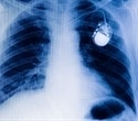 Houston Methodist offers world's smallest heart device for patients with bradycardia