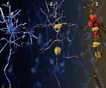 Scientists have developed a new dye that could offer noninvasive early diagnosis of Alzheimer's disease
