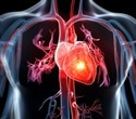Patients without calcium buildup in arteries have lower heart attack risk, research shows