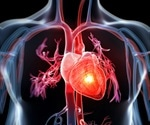 Metabolic syndrome prevalent in heart attack patients