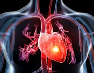 Using common pain relievers during acute respiratory infection linked to increased heart attack risk