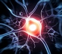 Researchers discover new role of enzyme in promoting self-destruction of axons