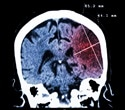 Scientists find overlap between causes of RA and Huntington's disease