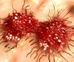 New insights into cancer cell signaling could help prevent metastases