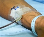 Receiving blood transfusion during liver cancer surgery has higher risk of recurrence and death