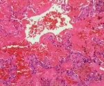 What Causes Goodpasture Syndrome?
