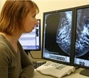 Link between breast cancer risk factor and inflammation raises hopes for preventative treatments
