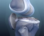 Osteochondral knee defect treated using cell technology