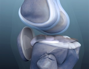 Researchers identify risk factors for severe infection after knee replacement