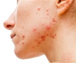 Acne may be a natural, transient inflammatory state when facial skin is exposed to microbes