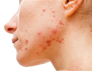FDA approves new topical retinoid gel for OTC treatment of acne