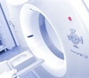 New PET scan can detect prostate cancer earlier than MRIs and CT scans