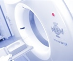 New PET/CT tracer shows high detection rate for diagnosis of acute venous thromboembolism