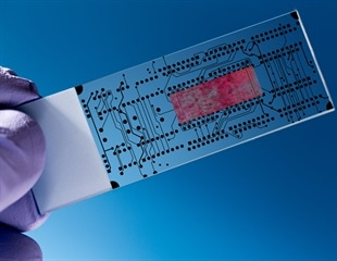 Novel sensor could accelerate diagnosis of sepsis