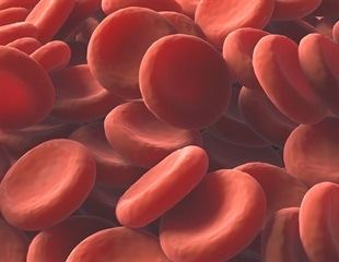 Brazilian researchers propose new way for treating thalassemia major
