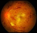 Unique imaging technique identifies biomarkers of cellular damage done by diabetic retinopathy