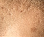 FDA approves first laser treatment for stretch marks