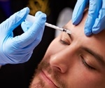 Botox Cosmetic receives FDA approval for treatment of crow's feet lines