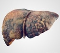 Altered secretion behavior of fatty liver can lead to damage of other organs