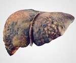 Study suggests cirrhosis and liver disease nearly inevitable for people with hep C