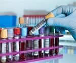 Psychiatric disorders detected using blood test