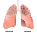New study reveals potential drug to combat life-threatening effects of COPD
