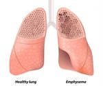Emphysema linked to accelerated aging protein