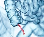 Obese patients with appendix less likely to have complications after minimally invasive procedure