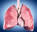 Diet rich in tomatoes and apples may help restore lung damage caused by smoking