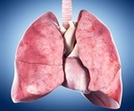 New study confirms geographic bias in lung allocation for transplant