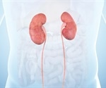 Metabolites significantly affected in chronic kidney disease, study finds
