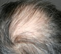 Medications that Can Cause Alopecia / Hair Loss
