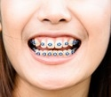 Researchers develop film to prevent bacteria from growing on dental retainers and aligners
